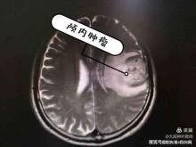 西安市九院运用虚拟现实技术精准切除颅内胶质瘤
