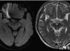 颅脑MR平扫中极易漏诊的点!